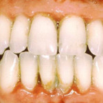 Gum Disease & Cancer